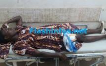 Ziguinchor : Une militante du Pds blessée par une balle perdue tirée par la police