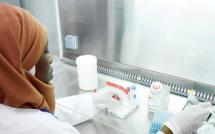 Covid-19 : Mise en place très prochaine d'un laboratoire mobile à Ziguinchor